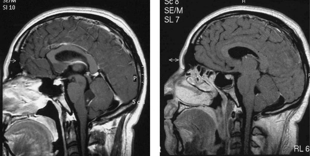 La compresión del cuarto ventrículo usando una técnica osteopática ...